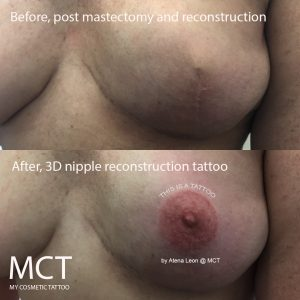 Before and after 3D nipple tattoo reconstruction
